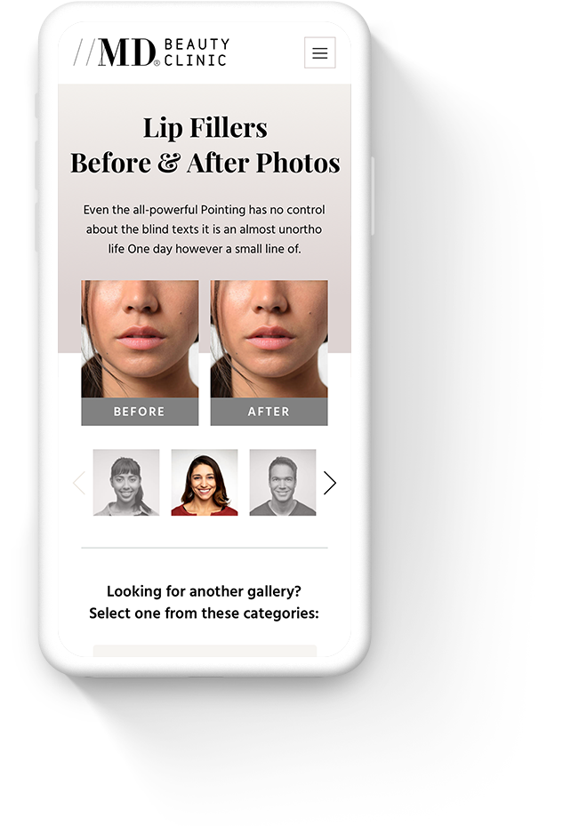 Mobile Web Design for MD Beauty Clinic